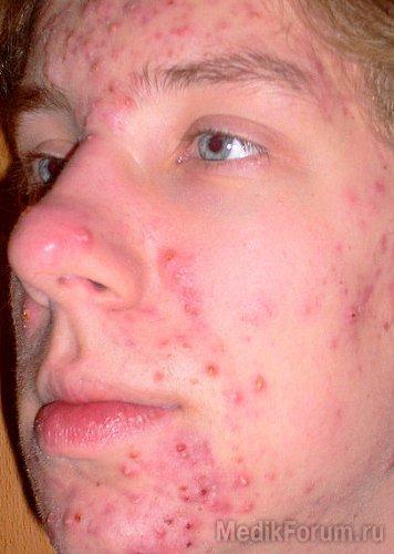 Как лечить угревую сыпь у подростков в домашних условиях